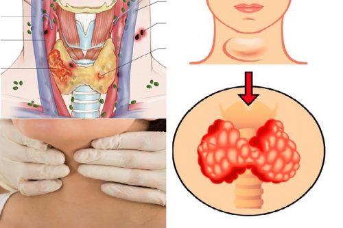 Chữa ung thư tuyến giáp