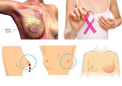 Dấu hiệu ung thư vú là gì?