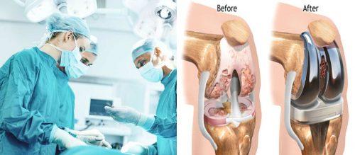 Điều trị ngoại khoa viêm khớp
