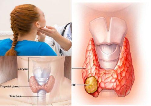 Nguyên nhân gây bệnh ung thư tuyến giáp là gì?