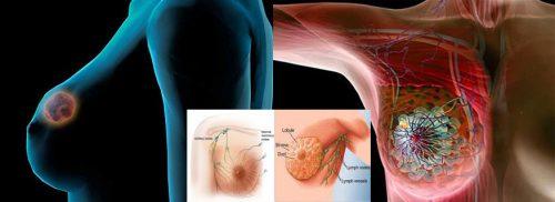 Nguyên nhân ung thư vú