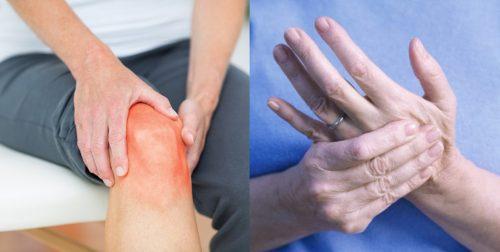 Triệu chứng của viêm khớp