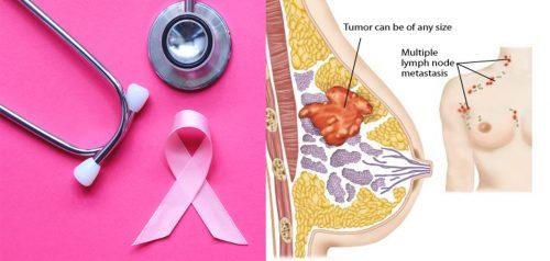Ung thư vú giai đoạn cuối có chữa được không?