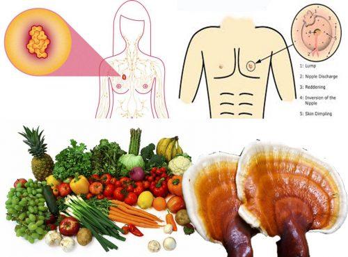 Ung thư vú với nguyên nhân dấu hiệu và cách điều trị ung thư vú