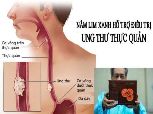Công dụng nấm lim xanh Tiên Phước điều trị, ngăn ngừa ung thư thực quản.