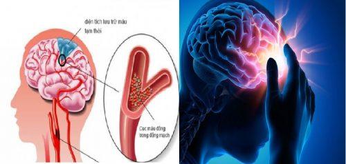 Đột quỵ não là gì và có đặc điểm ra sao?
