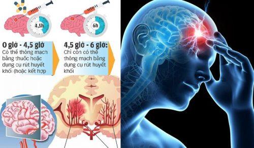 Khi thấy dấu hiệu bị đột quỵ não không nên làm điều gì?