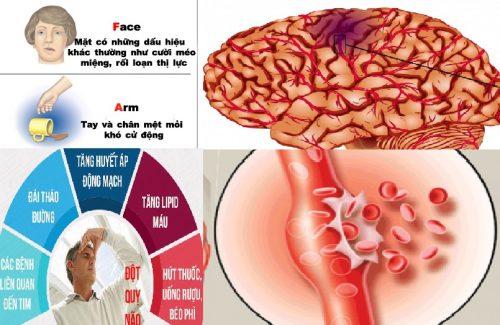 Nguyên nhân và biểu hiện của đột quỵ não
