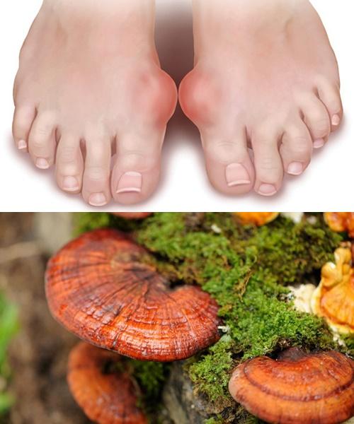 Trước khi nắm được cách dùng nấm lim xanh rừng Tiên Phước, người đọc cần nắm được về bệnh gout.