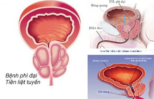Nguyên nhân gây ra bệnh phì đại tiền liệt tuyến là gì?