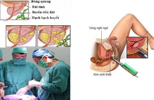 Phương pháp điều trị phì đại tiền liệt tuyến