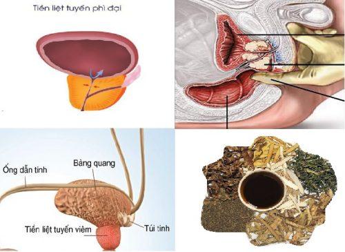 Phương pháp điều trị phì đại tiền liệt tuyến bằng Đông y