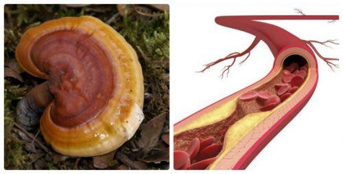 Tác dụng nấm lim rừng hỗ trợ điều trị và ngăn ngừa bệnh xơ vữa động mạch.