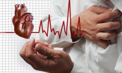 Xơ vữa động mạch có thể dẫn tới đột quỵ.