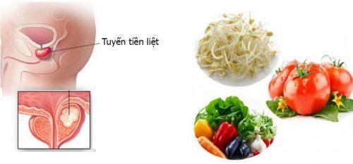 Thực phẩm giúp phòng ngừa và điều trị phì đại tiền liệt tuyến