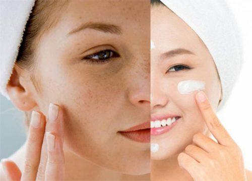 Chăm sóc da sau khi trị tàn nhang bằng tia laser