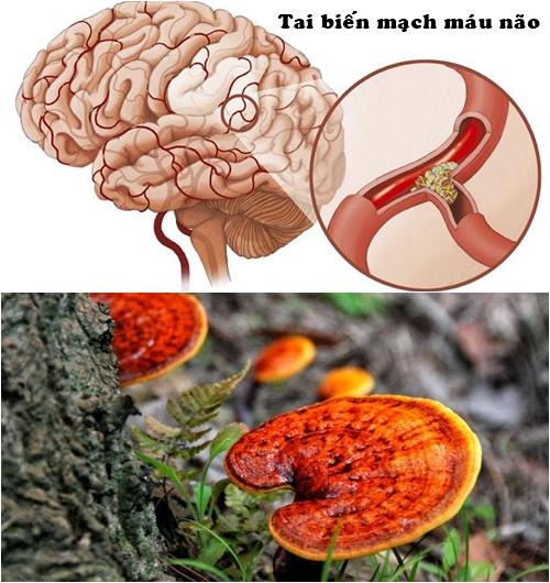 Nấm lim xanh có tác dụng loại bỏ các cục máu đông để ngăn chặn tai biến mạch máu não