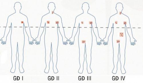 Các giai đoạn của bệnh ung thư hạch.