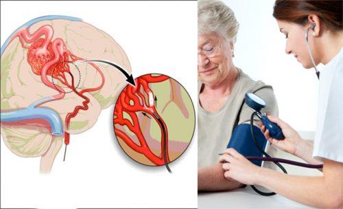 Phòng tránh tai biến mạch máu não cho người cao huyết áp