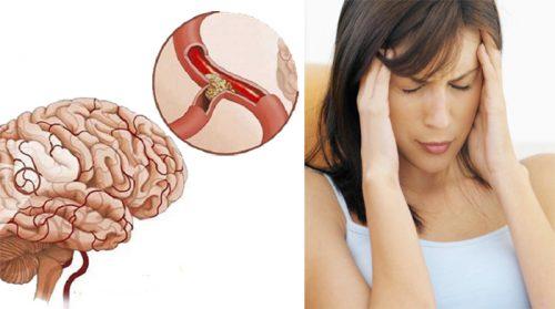 Phòng ngừa tai biến mạch máu não tái phát