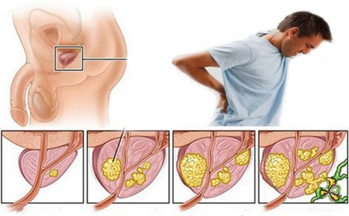 Nguyên nhân ung thư tiền liệt tuyến