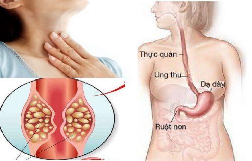 Các giai đoạn bệnh ung thư thực quản là gì?