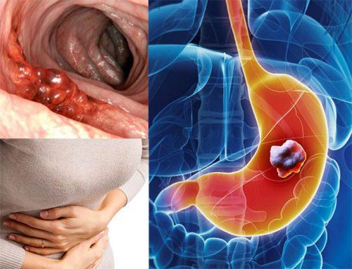 Các dấu hiệu nhận biết ung thư dạ dày