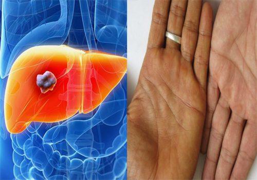 Các dấu hiệu ung thư gan