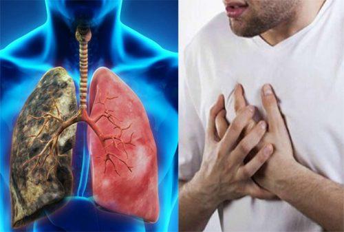 Các dấu hiệu ung thư phổi giai đoạn đầu