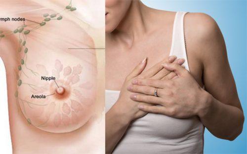 Những biểu hiện ung thư vú