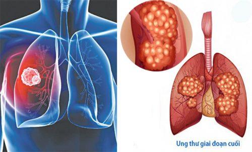 Những triệu chứng ung thư phổi giai đoạn cuối
