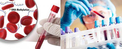 Xét nghiệm tế bào chẩn đoán ung thư sớm