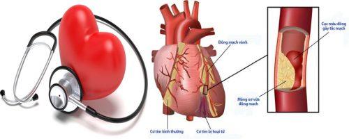 Các bệnh lý của tim mạch thường gặp