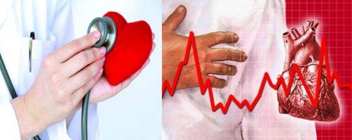 Các phương pháp chữa bệnh tim mạch