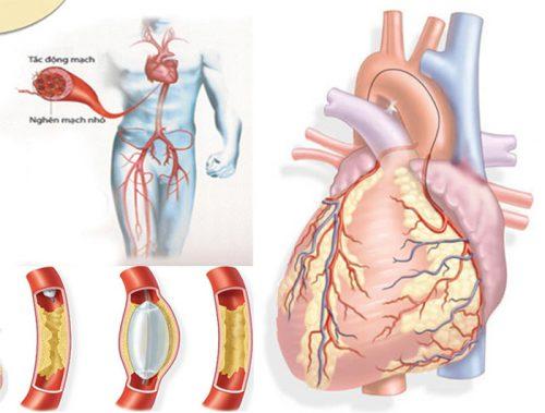 Biến chứng của bệnh tim mạch vành