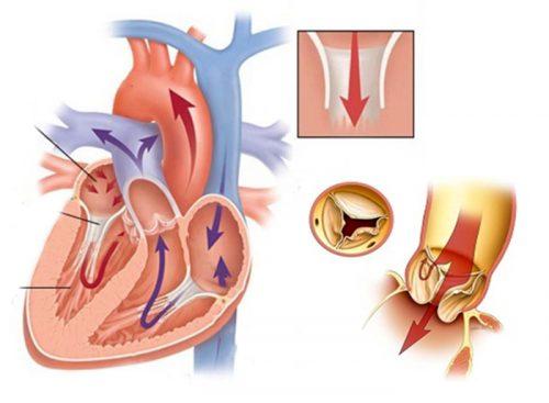 Biểu hiện của bệnh hở van tim hai lá