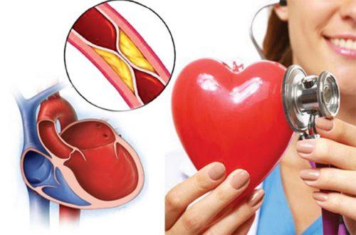 Các dấu hiệu của bệnh cơ tim