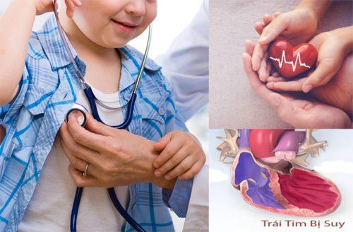 Các dấu hiệu bệnh suy tim ở trẻ em