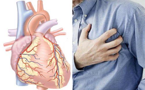 Cách điều trị bệnh tim mạch vành bằng Đông y