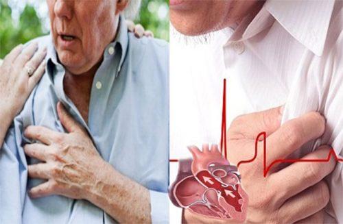 Dấu hiệu bệnh suy tim ở người cao tuổi