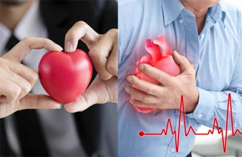 Dấu hiệu bệnh tim mạch ở nam giới
