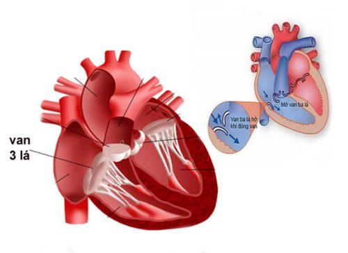 Dấu hiệu của bệnh hở van tim ba lá