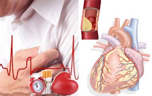 Đối tượng mắc bệnh tim mạch vành