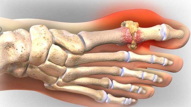 Bệnh gout gây ra các cơn đau đớn khó chịu cho người bệnh