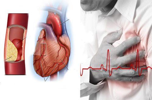 Những dấu hiệu của bệnh tim mạch vành