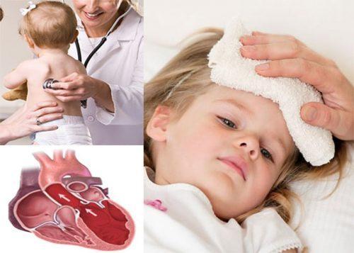 Những triệu chứng thấp tim ở trẻ em