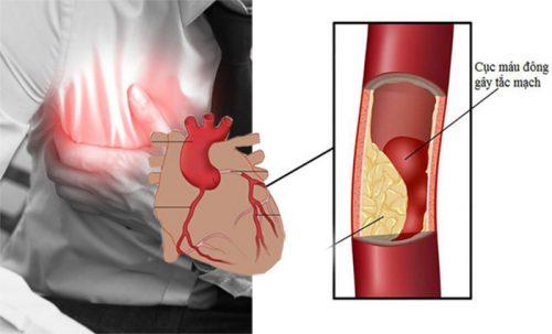 Triệu chứng của bệnh tim mạch vành