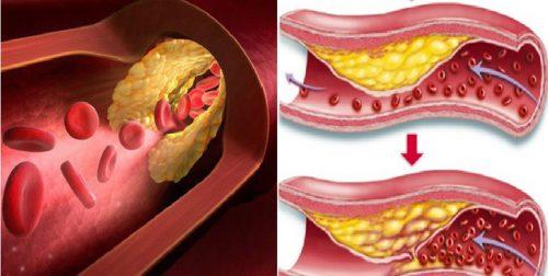 Bệnh mỡ máu là gì và có nguy hiểm không?