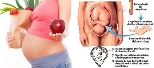 Biến chứng tiểu đường thai kỳ