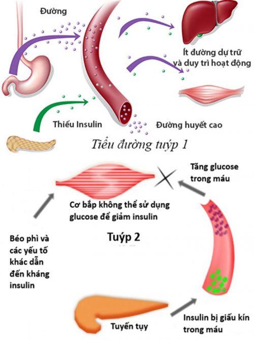 Các loại bệnh tiểu đường